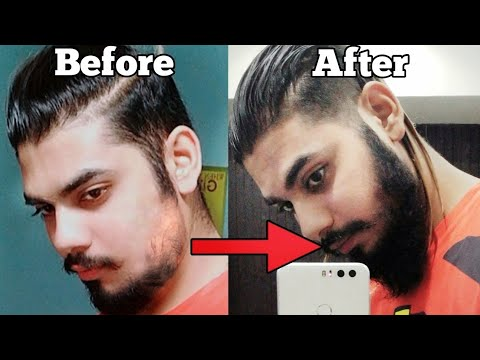 HOW TO GROW A BEARD FASTER NATURALLY AT HOME | FILL PATCHY BEARD | Asad Ansari