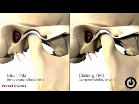 Clicking TMJ dislocation