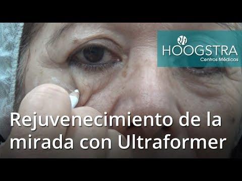 Rejuvenecimiento de la mirada con Ultraformer (18056)