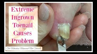 👣 Extreme Ingrown Toenail Causes Problem That Needs To Be Removed Tutorial👣
