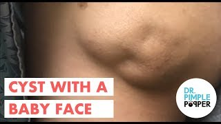 Video An Amazing Baby Faced Cyst! download MP3, 3GP, MP4, WEBM, AVI, FLV Januari 2018