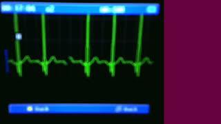 ECG - Resting