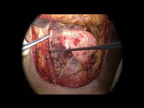 Erken evre gırtlak kanserinde cerrahi tedavi (Supracricoid laryngectomy)