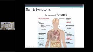 Testimoni Pasien Anemia Aplastik terbukti bisa sembuh.