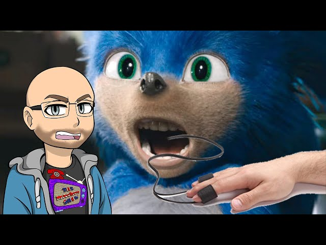 Sonic The Headcase (Prank Call)