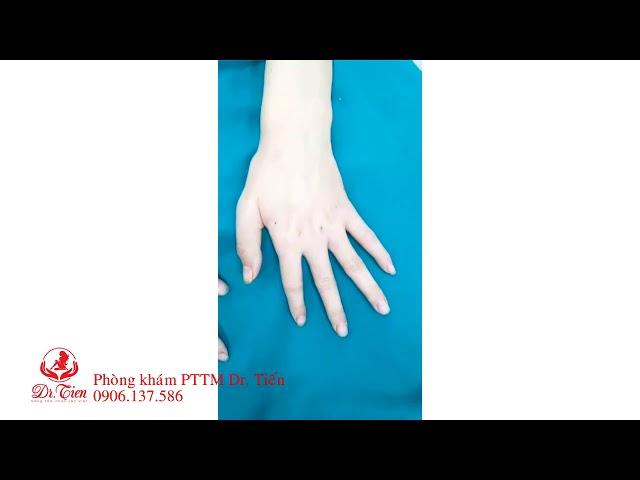 Drtien.com- Ghép mỡ bàn tay- Thay đổi dáng bàn tay trở nên đẹp hoàn hảo