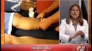 Hematomas iv de tratamiento