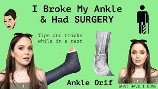 My Story Broken Ankle Amp Ankle Orif Surgery Q Amp A