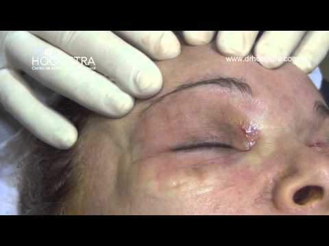 Endoscopic brow lift and blepharoplasty with out scars (14119)