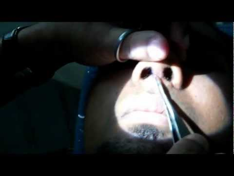 Post Op Care - Suture Removal After Rhinoplasty (Nose Job) - Dr Paulose FRCS (ENT)