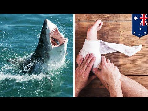 澳洲浮潛遭鯊魚攻擊 青年1斷腿1重傷