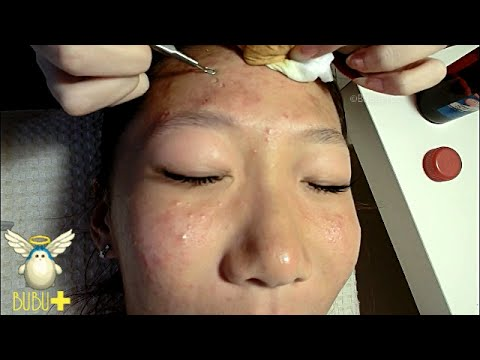 Extraction Of Facial Pimples And Acne Youtube