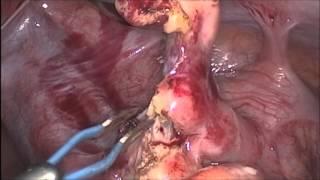 Appendicectomie par voie cœlioscopique pour appendicite aigüe