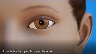 Oculoplastics AAO Entropion and Ectropion Repair