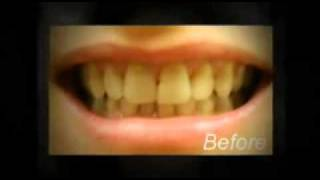 Before and Afters- DentalOasis.com Thumbnail