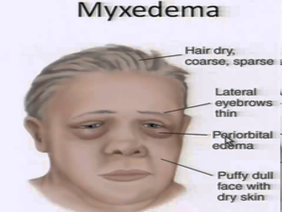 Nursing School Hypothyroidism Youtube