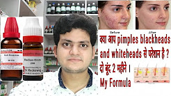 hqdefault - Homoeopathic Remedies For Acne Vulgaris
