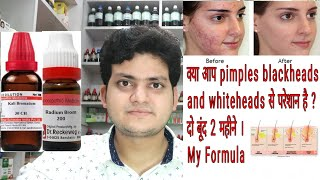 Homeopathic medicine for acne ! Pimples ! Blackheads ! Whiteheads ! My formula ?