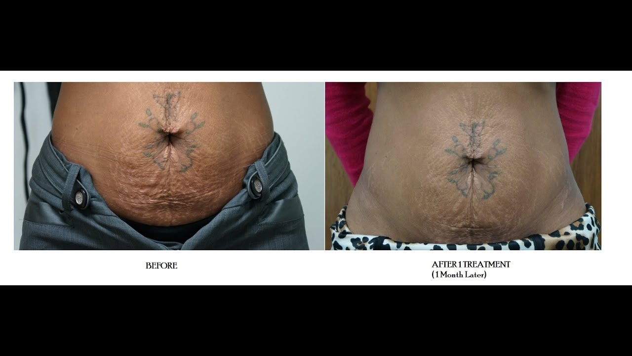 tripollar skin tightening
