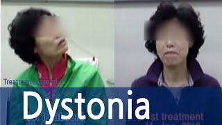 Cervical Dystonia