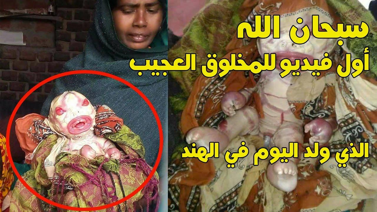 Image result for سبحان الله شاهد المخلوق الذي أدهش العالم ولد اليوم بالهند