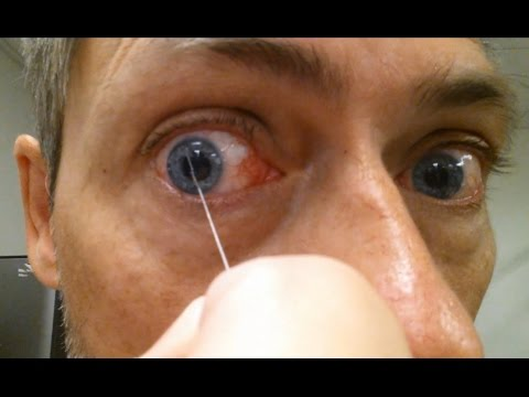 Conjunctivitis: Eye Discharge   Wait for it