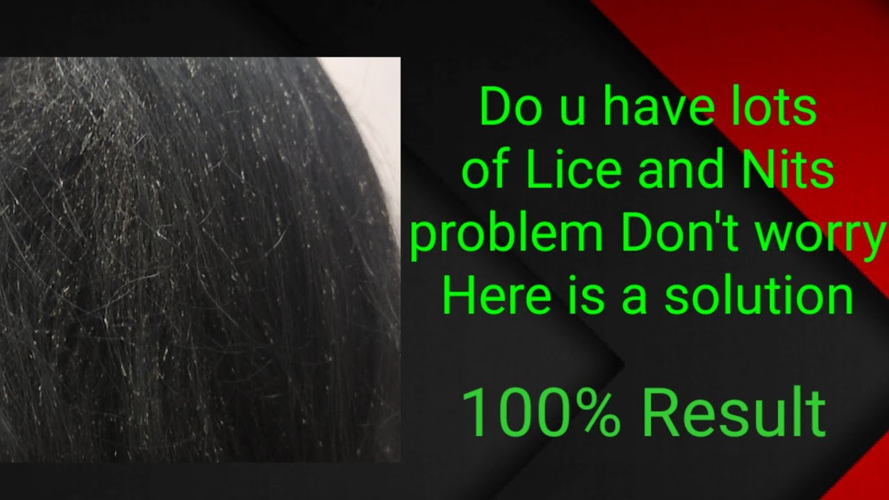 Download 100℅ guarantee Lice and Nits Treatment #lice#nits#licetreatment#nitstreatment#பேன்#ஈர்#womensproblem