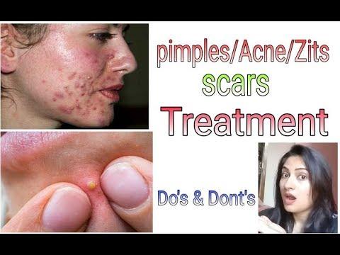 Pimples/Acne/Zits: best and effective treatment; Brainy gorgeous Divas....