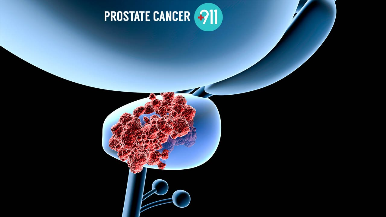 can a urine test detect prostate problems