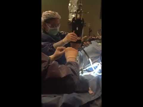 Wrist Arthroscopy For Ligament Repair In Elite Volleyball Athlete