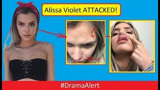 Alissa Violet ATTACKED! (FOOTAGE) #DramaAlert FaZe Banks BREAKS Hand Defending Her!