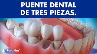 Puente dental de tres piezas ©