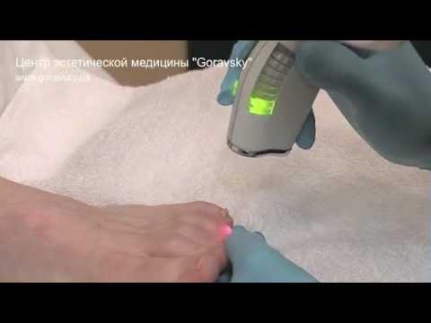 Лазерное лечение грибка ногтей (онихомикоза)