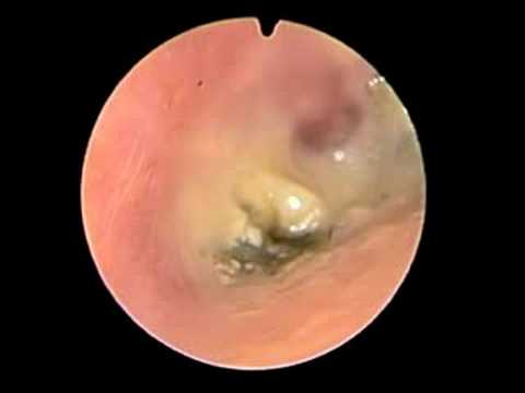 fungal otitis externa - youtube, Skeleton