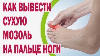 Как можно вывести сухую мозоль на пальце ноги(Как можно вывести сухую мозоль на пальце ноги и в чем причина ее появления? Оказывается, в большинстве случа..., 2015-11-18T10:08:38.000Z)