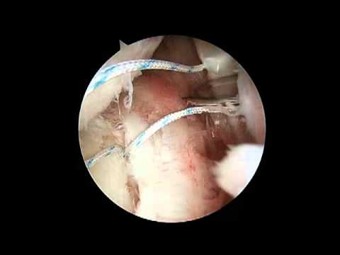 Arthroscopic Shoulder Surgery 360 Degree Labrum Tear