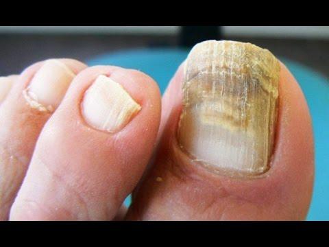 remedios caseros para los hongos de uñas de los pies