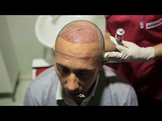 Greffe de cheveux Turquie - Séance de lavage après la greffe de cheveux