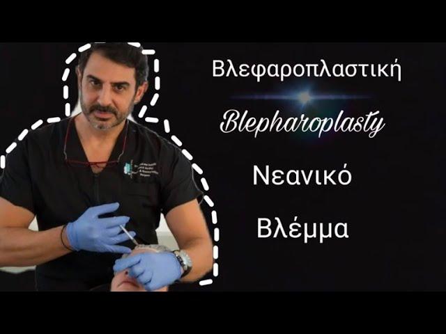 Βλεφαροπλαστική - Blepharoplasty Dual Plane by Dr.Andreas  Ioannides