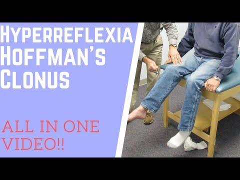 hyperreflexia and clonus - youtube, Skeleton
