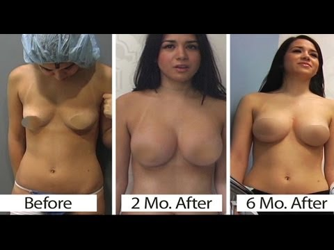 Breast Augmentation: Silicone from YouTube · Duration:  5 minutes 14 seconds