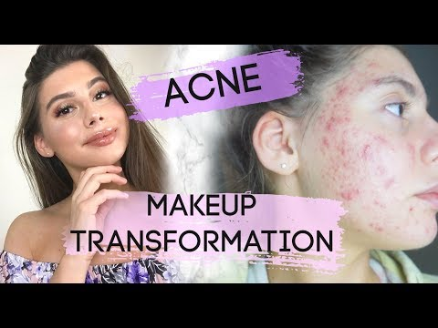 MAKEUP TRANSFORMATION FOR ACNE || Talking about confidence, chit chat GRWM!! thumbnail