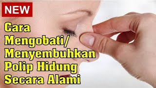 Tonjolan / Polip penanda kanker yang mematikan ? / Go Dok Indonesia.