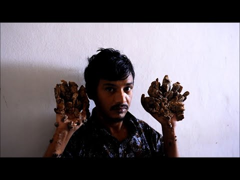 El hombre árbol pide que le amputen las manos