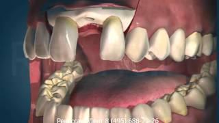 Хирургия - Имплантанты 3D версия(, 2012-10-13T17:13:12.000Z)
