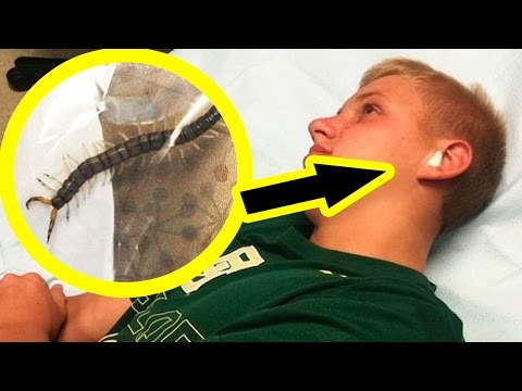 10 Animals Found Living In Human Ears