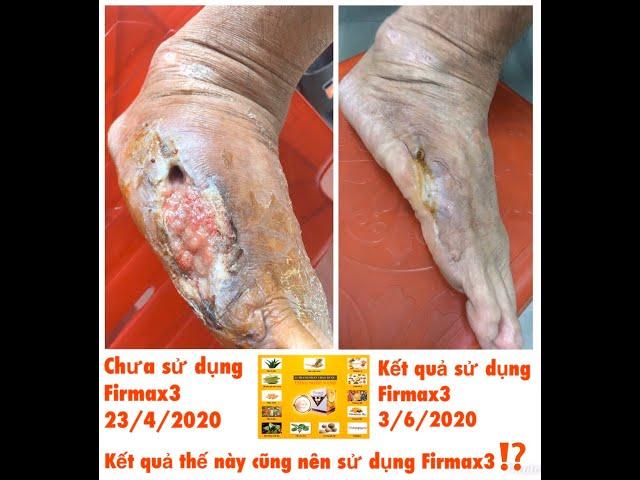Firmax3 giúp làm lành chân bị nhiễm trùng, hoại tử