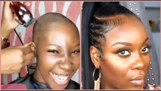Alopecia Transformation, Short Hair Slay Plus 10 More Hairstyles Featuring Hair Extensions