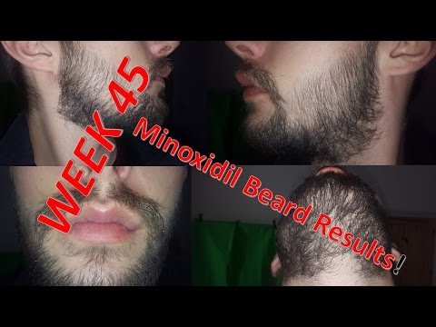 Minoxidil Beard | Week 45 | My Routine | #FacialFuzzFriday