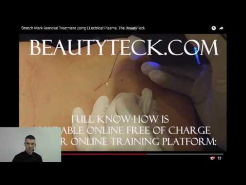 Stretch marks removal using Plasma, the BeautyTeck.